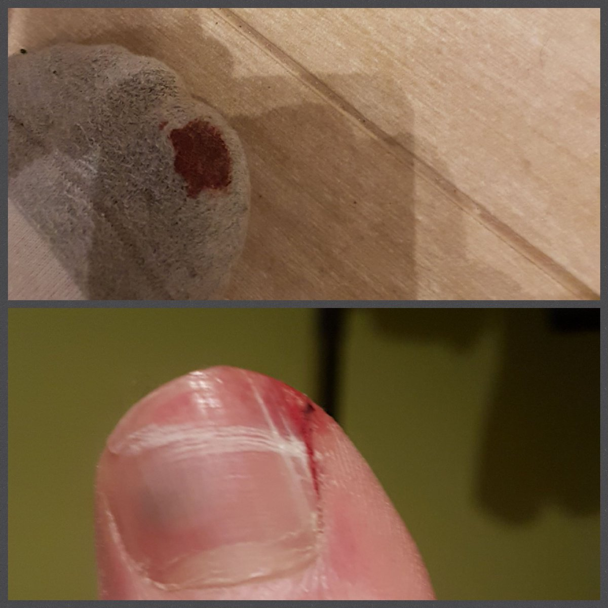 When you hit stump while riding bicycle... It can cost you a nail. #bicycles #13Mar #velo<br>http://pic.twitter.com/N7L8X5A7ri