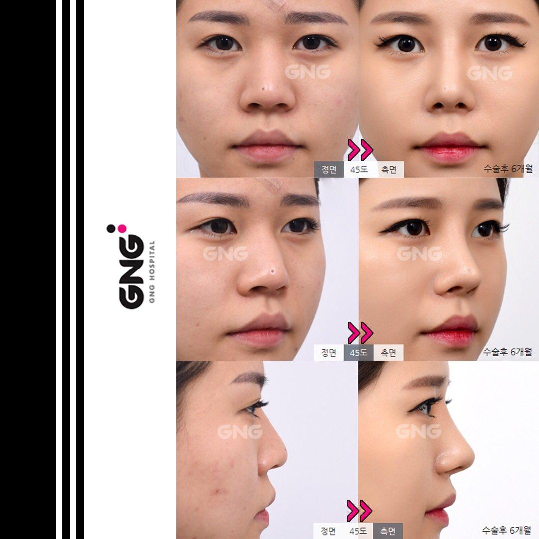 鼻 整形 バレ ない 鼻整形がバレるケースと整形バレ対策!バレない鼻整形のやり方