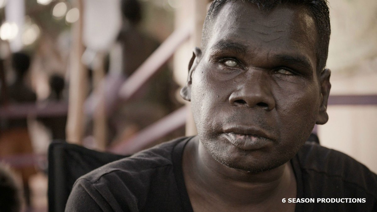 Gurrumul Yunupingu was an indigenous Australian singer who was born blind. His extraordinary voice led to a career as a professional performer. A documentary film has been made about him. Watch this: bbc.in/2DuYsFP