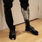 3Dプリンターが登場してからというもの、義足のデザインの進化が凄いことになってるよね。