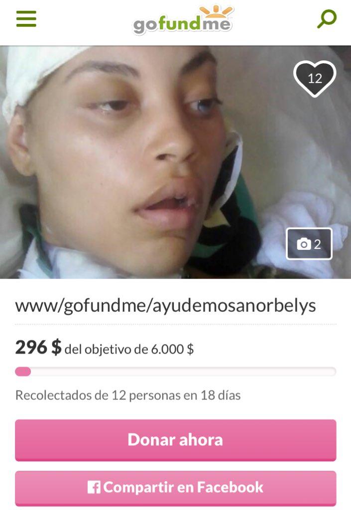 Ella iba a su último examen al Clínico antes de tener a su bebé, se cayó del transporte público y se fracturó el cráneo. Afortunadamente salvaron a su hija pero necesitan comprar válvula y pagar cirugía. Ayudemos a esta joven madre venezolana https://t.co/k49kulC07L