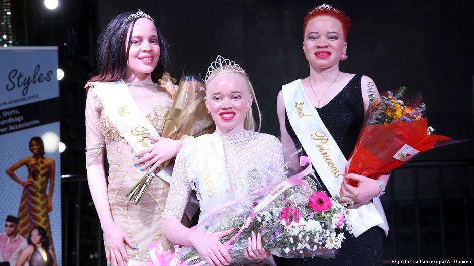 Zimbabwe crowns first 'Miss Albino' in bid to tackle stigma https://t.co/IeIUjbQOTm