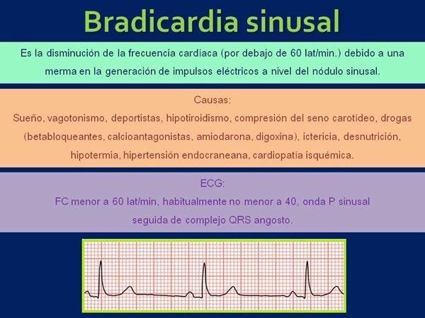 Bradicardia causa hipertensión