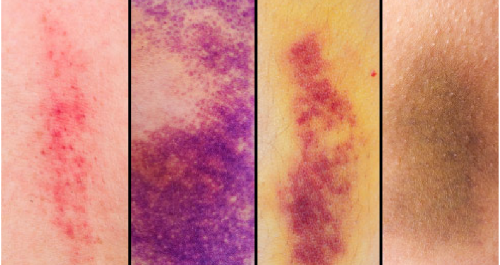 RT As a bruise heals, hemoglobin breaks down into other compounds. This process is what makes your bruise change colors. Learn more: https://t.co/b77QXgknCG https://t.co/ncoE0kWyly #health #wellness via WebMD: