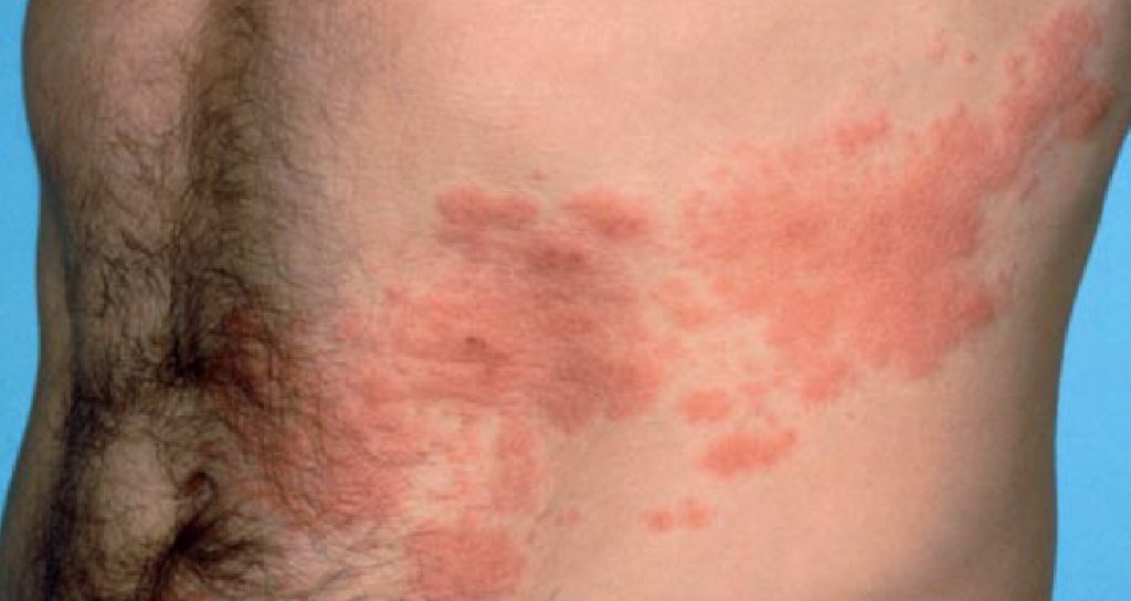RT The shingles rash can be a distinctive cluster of fluid-filled blisters -- often in a band around one side of the waist. Learn more: https://t.co/FZYDiciNQD https://t.co/00B6GwtWtC #health #wellness via WebMD: