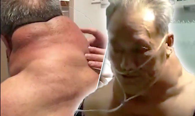 Pensioner develops 26-inch neck of tumours after drinking LITRES of spirits every day https://t.co/y3QNuenBVf