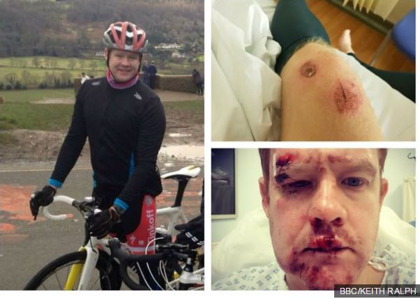 Potholes: 'I hit a pothole and suffered a bleed on the brain'  https://t.co/AWZpiwsAQs