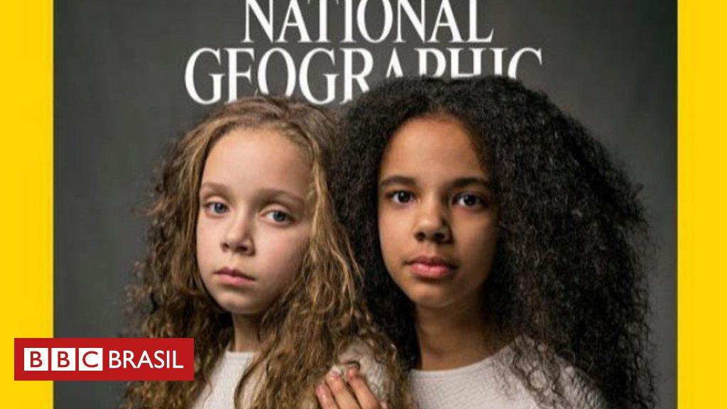 'Pensam que somos apenas melhores amigas': as gêmeas que nasceram com a cor da pele diferente https://t.co/lWrWHAIf2n