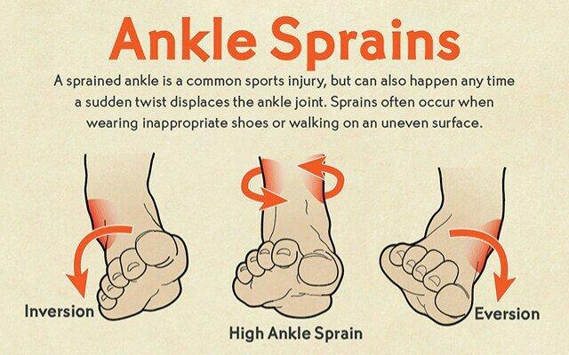 Tips kesihatan , tips rawatan kaki , rawatan kaki terseliuh , ankle sprains , cara merawat kaki terseliuh
