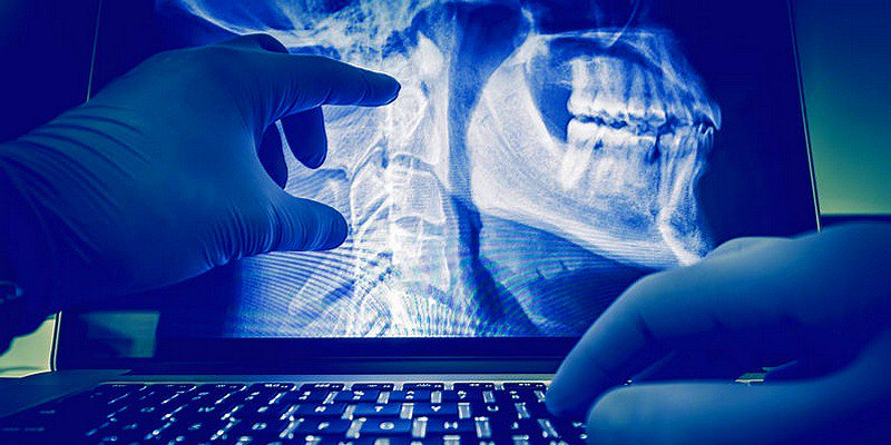 Artificial Intelligence Is Changing The Way Medical Technicians Work   https:// tnw.to/2uWTHCw  &nbsp;      v/ @thenextweb #AI #HealthTech #ML #DL<br>http://pic.twitter.com/yvZYTw4V3w