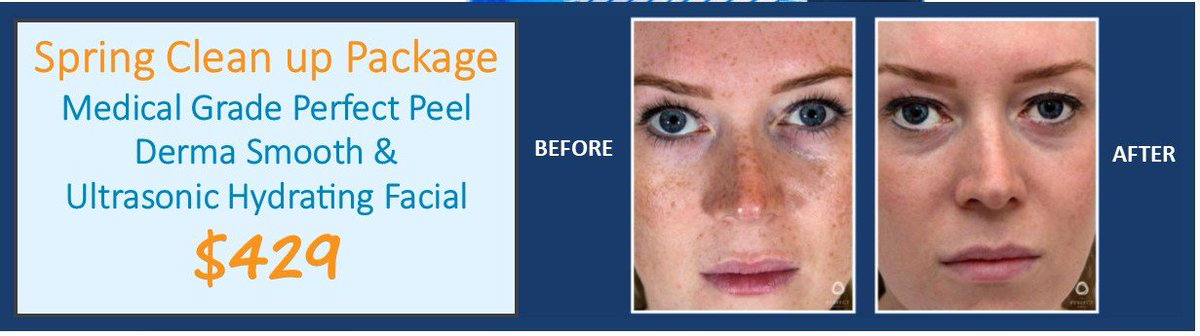 Facial naples peel