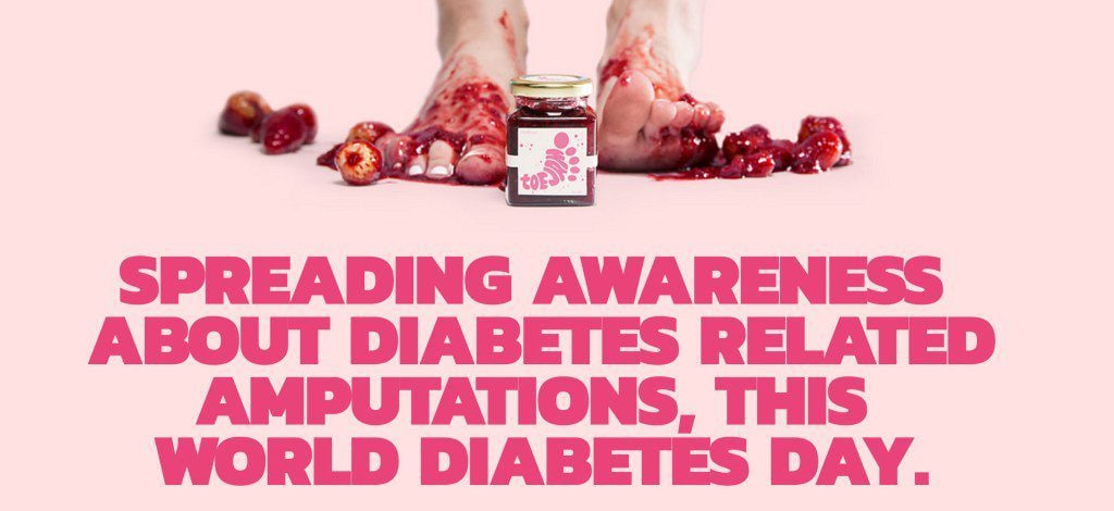 Replying to @DGArmstrong: #ToeJam: Sweetness for the Diabetic Sole #WorldDiabetesDay
