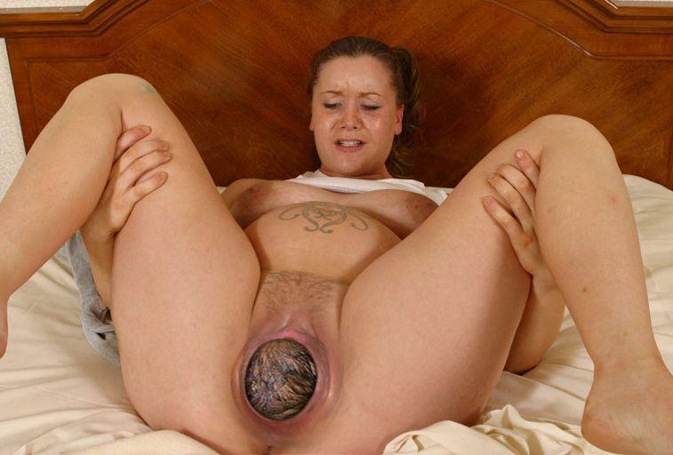 Lightning Crotch Pain During Pregnancy