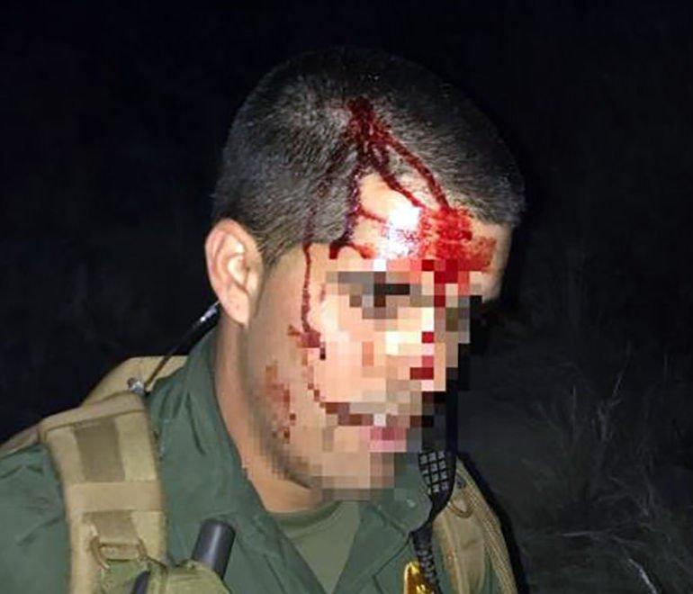 Tucson Sector Border Patrol: Immigrant smashed agent's head into rock https://t.co/fIkg8XueG8