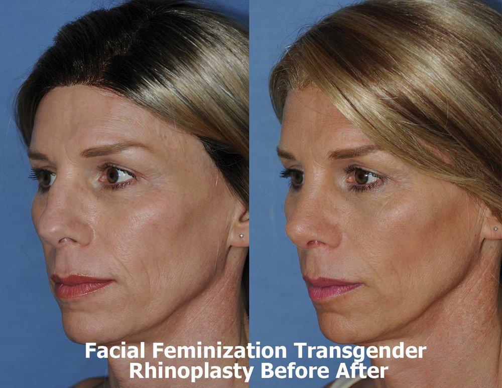 Aesthetic facial plastic surgery not