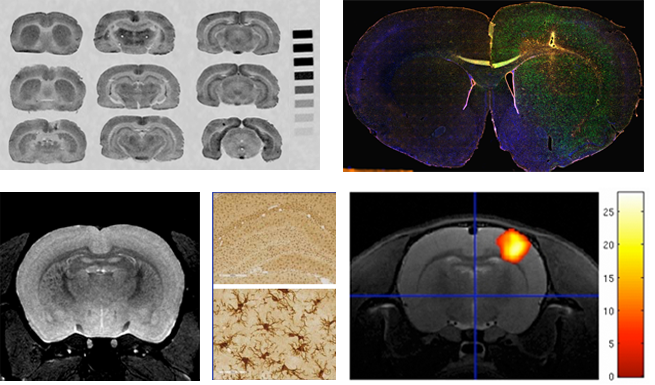 test Twitter Media - Discover the BRAIN Centre @BRAIN_KCL, a newly refurbished preclinical neuroimaging facility with #MRI and #spectroscopy methods - open to all, including those unfamiliar with imaging.  https://t.co/Zm9oKNkoUJ https://t.co/UFvN1Q37tx
