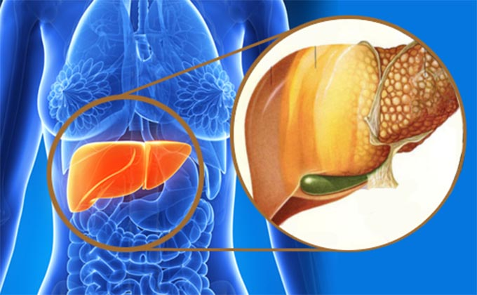 Male Hormone Excess Increases Risk Of Fatty Liver Disease In Women With PCOS