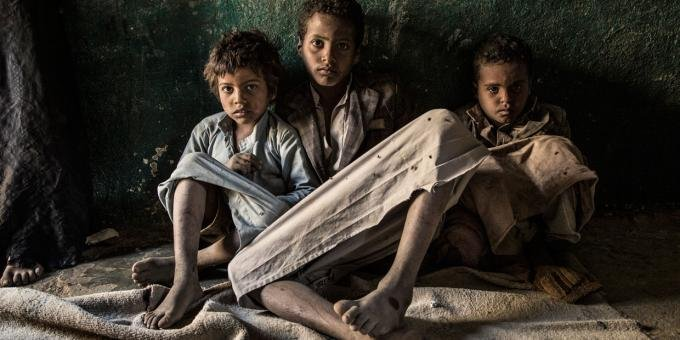 Yemen are living through a humanitarian catastrophe, over 24 million Yemenis, 80% now live below the poverty line...