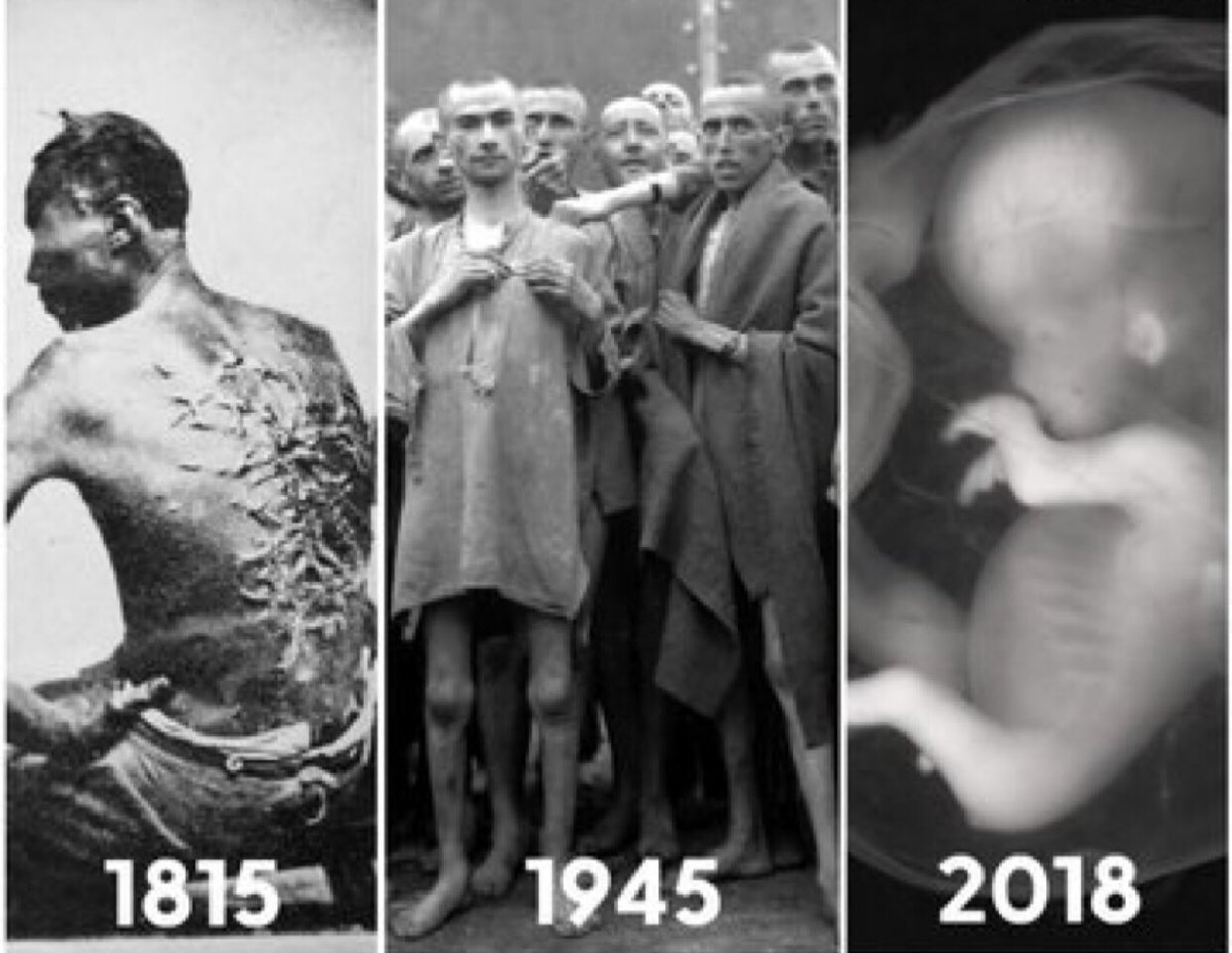 """People used to say that about slavery too. One day, as pro-lifers, we hope that #abortion will be seen as abhorrent as slavery. Because black people were called """"not human"""" too. Same w/ Jews during the Holocaust. 60M babies have been killed since '73 #RoeVWade  #EndAbortionNow<br>http://pic.twitter.com/ar1qxteLvB"""