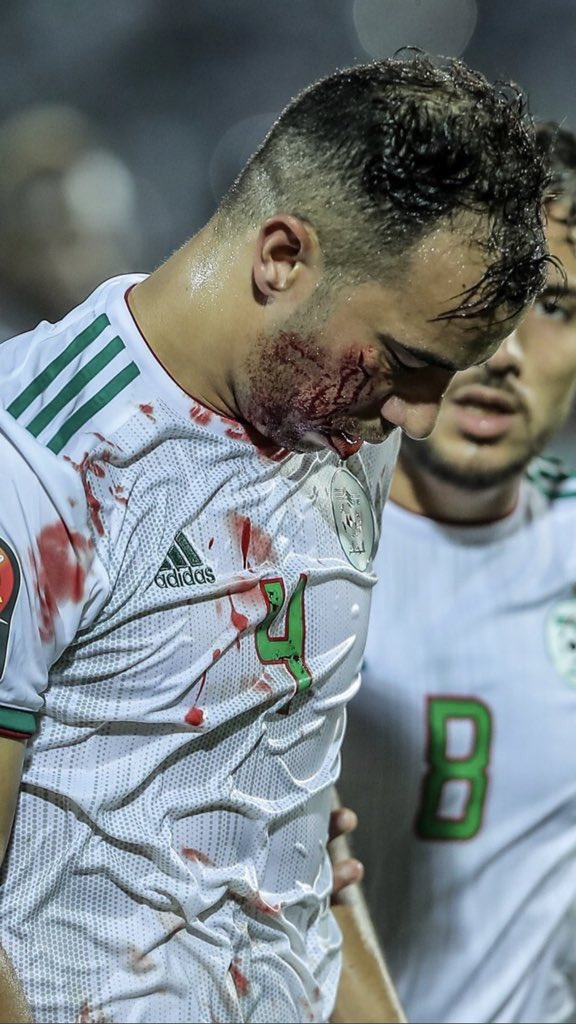 #123VivaLAlgerie  not all players are warriors,,, congrats Jamal <br>http://pic.twitter.com/G0CloWFDbK