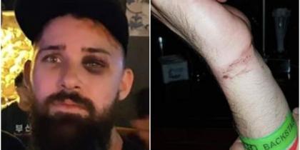 """Ancora un'aggressione omofoba in Europa. Stavolta nella Metro di #Barcellona in sei hanno pestato un ragazzo solo perché sembrava """"troppo gay"""". Nel viso e sulle braccia i segni dell'aggressione. Ancora odio e violenza #stopomofobia"""