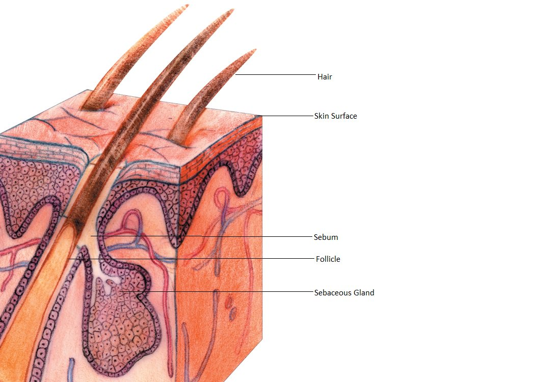 Image: An illustration of a normal hair follicle and surrounding structures, including hair, skin surface, sebum, follicle, and sebaceous gland.
