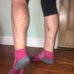 Some unconventional tan lines from tempo Tuesday on the Transpennine trail.#runeveryday #torqfuelled