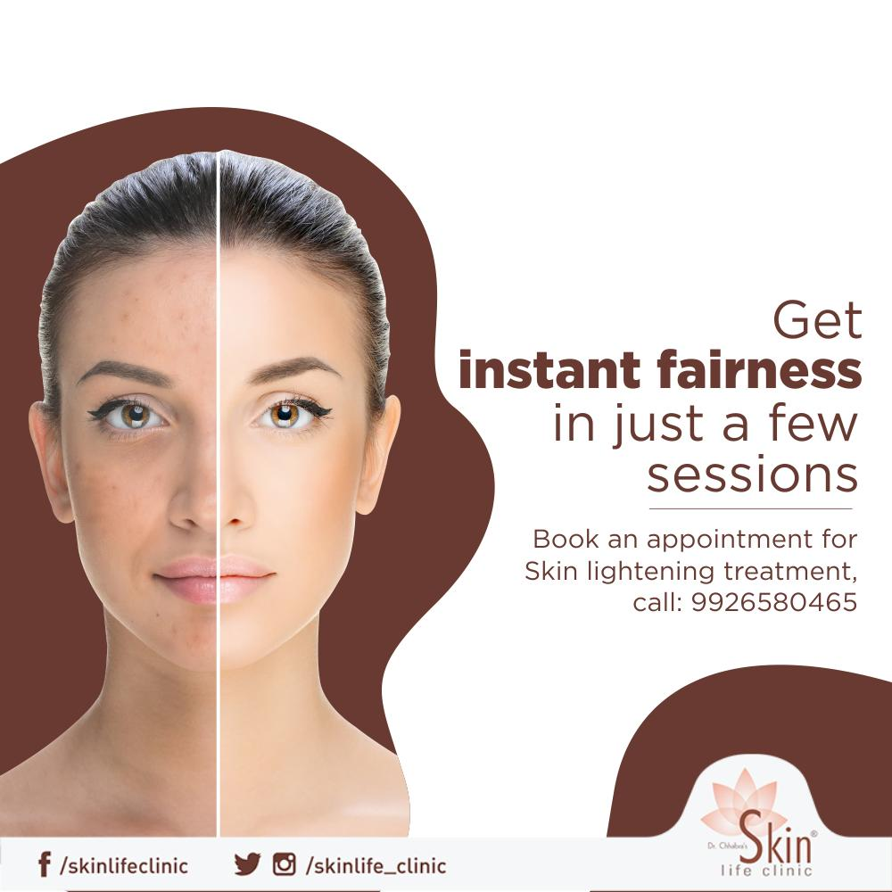Time to flaunt your beautiful and radiant skin, get skin lighting treatment done at Skinlife clinic by ace dermatologist J.S Chhabra. Contact: 9926580465 #Skinlightening #Skinlife