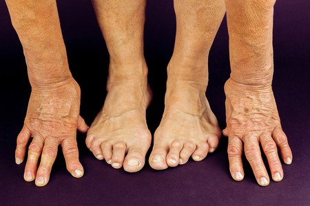 Could My Symptoms Point to Diabetes?  http://ow.ly/4P1g50uS0SO #diabetes #seniorfootcare