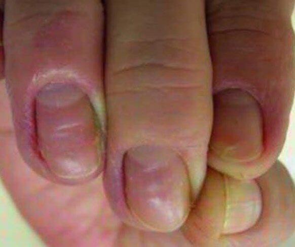 Paronychia Home Remedy