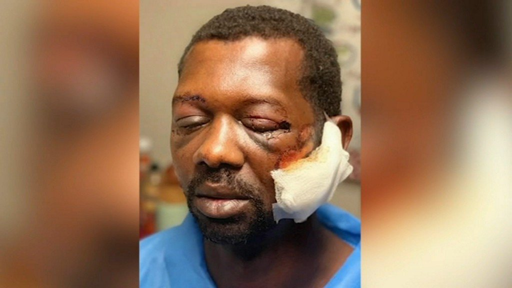 'You're trying to kill me,' Man says he was beaten by Baytown officers over prescriptions https://abc13.co/2LkpF6v