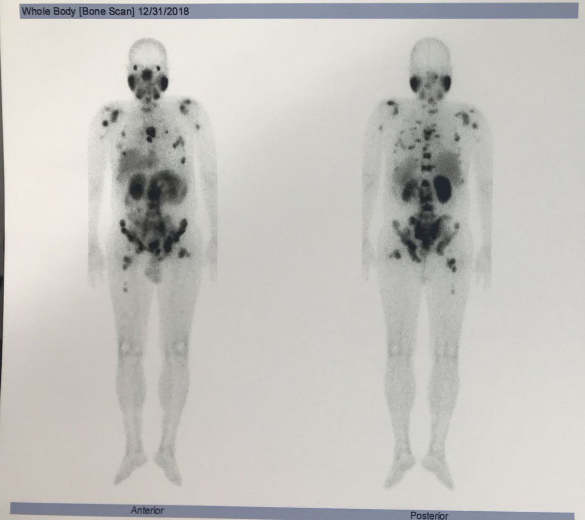 For the first time in the world, #HYNIC_PSMA #radiopharmaceutical_kit was manufactured by #Parsisotope for diagnosis of #prostate_cancer via #spect/CT scan. This kit provides low-cost scans with high resolution.