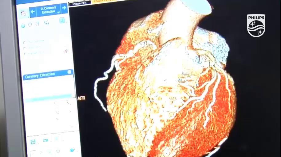 Junto al @CNIC_CARDIO hemos reunido a un grupo de expertos de todo el mundo para establecer el primer consenso internacional sobre el uso de la #resonancia magnética tras el #infarto http://to.philips/6012EvNUK