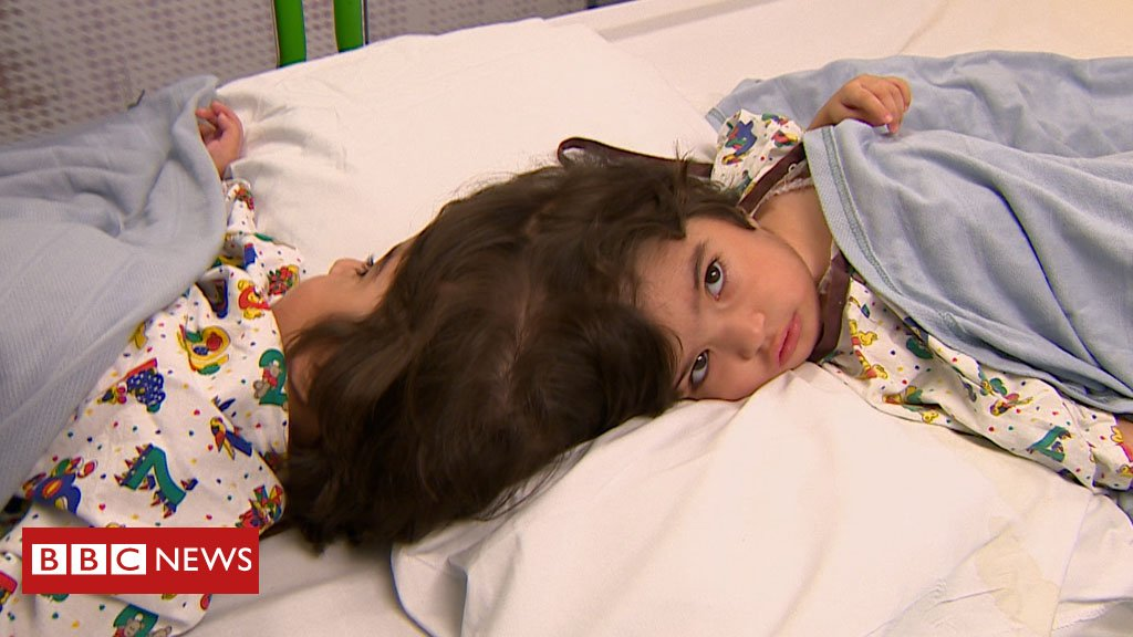 Safa and Marwa - named after the twin hills in Mecca They are Craniopagus conjoined twins, the rarest form of what is already a rare condition This is their remarkable story by @RachMBuch  https://bbc.in/2jDNZUV