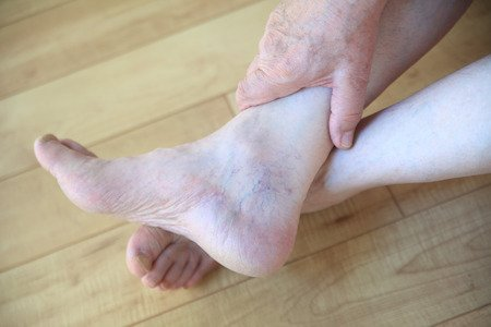 How should you take care of your feet if you have #diabetes? Keep them clean, dry and protected. http://ow.ly/pm0e30p5YX2 #footcare