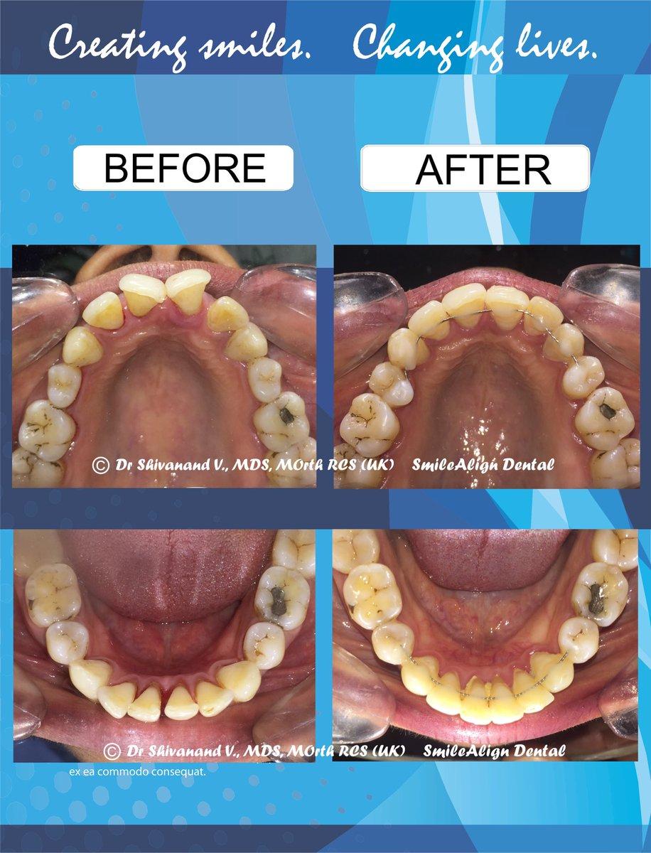 SmileAlign Dental (@SmilealignD) | Twitter