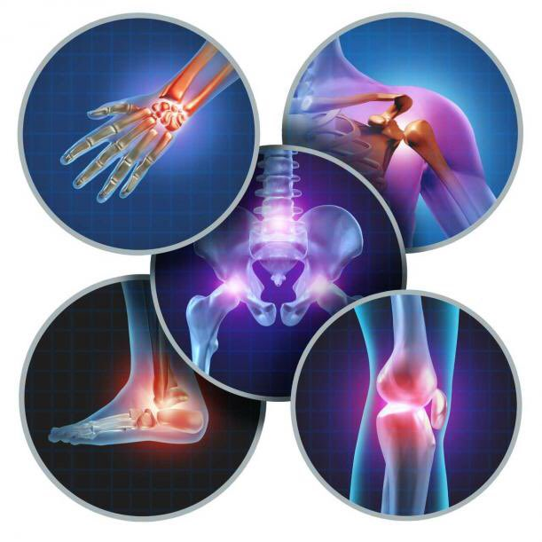 Osteoarthritis linked to higher risk of dying from cardiovascular disease: https://bit.ly/32wabSg