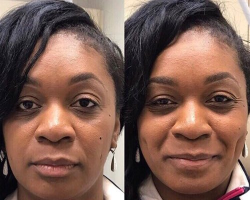 Dimpleplasty on JumPic com