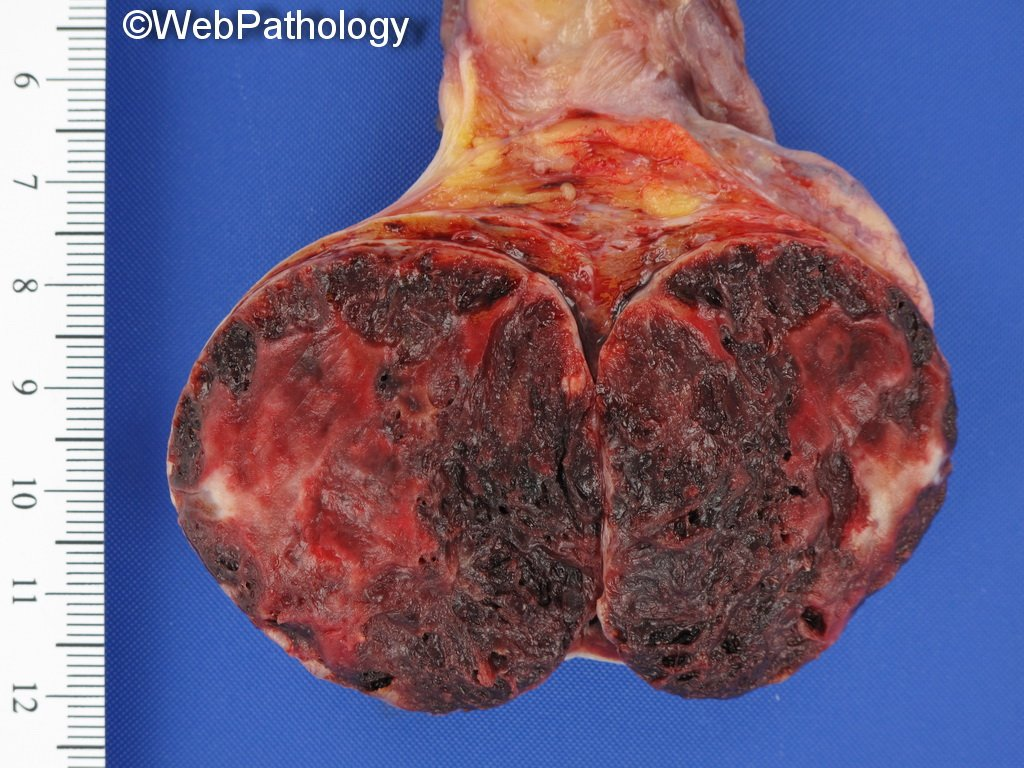 Over the next few days, I will be sharing some interesting/unusual testicular tumors; Here's 1/10: Elderly male. Slowly enlarging testicle. Scrotal ultrasound - heterogenous mass. Serum AFP, b-hCG, LDH within ref. range. Micro & diagnosis tomorrow #GUPath @Pathologists<br>http://pic.twitter.com/9MeBJQIPl0
