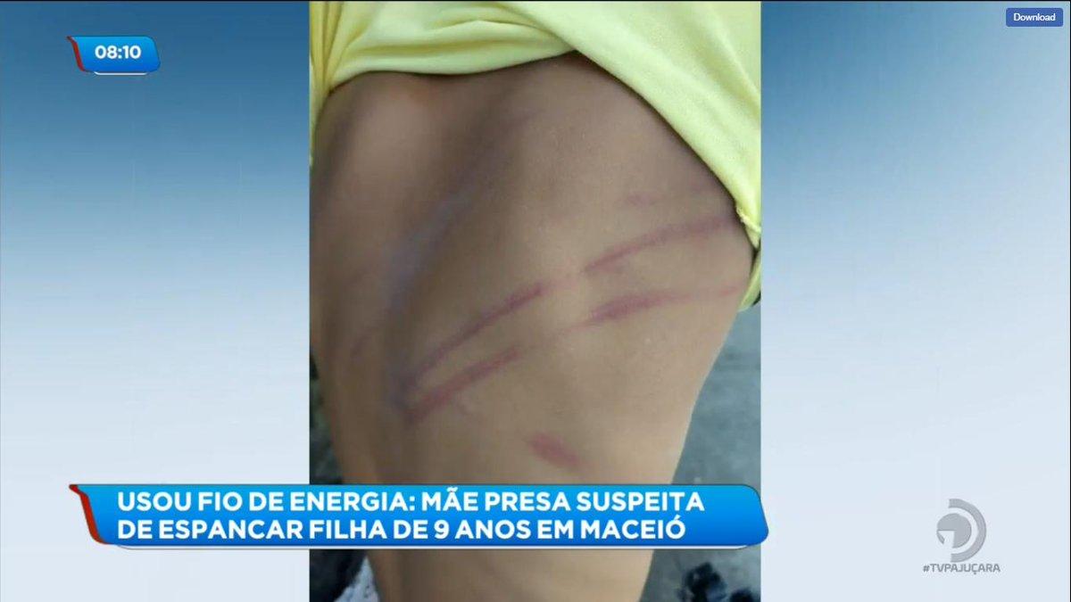 Mãe foi presa suspeita de espancar a filha de 9 anos com fio de energia 😨😓 #BalançoGeralAL https://t.co/7ONX6LBKwl https://t.co/19uSmWcArV