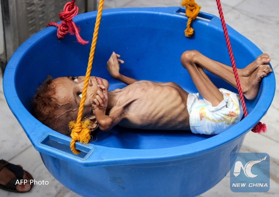 "UN humanitarian chief warns that conditions for most people in #Yemen are getting worse.  Nearly 500,000 cases of cholera reported so far this year, and over 700 deaths as a result, ""death toll will surely grow"" with aid cuts, he stresses  http:// xhne.ws/kctpz     <br>http://pic.twitter.com/qWrSP6S98z"