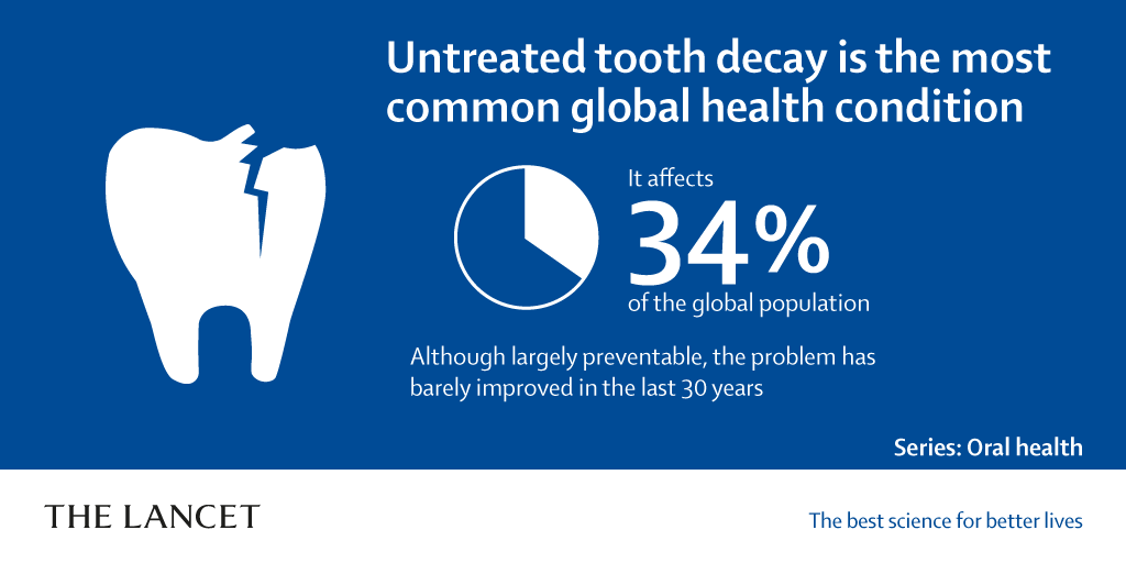 Oral diseases present a major global public health burden, affecting 3.5 billion people worldwide, yet #oralhealth has been largely ignored by the global health community: new @TheLancet Series aims to get #GlobalOralHealth on the #NCD and #UHC agendas https://hubs.ly/H0jSwml0