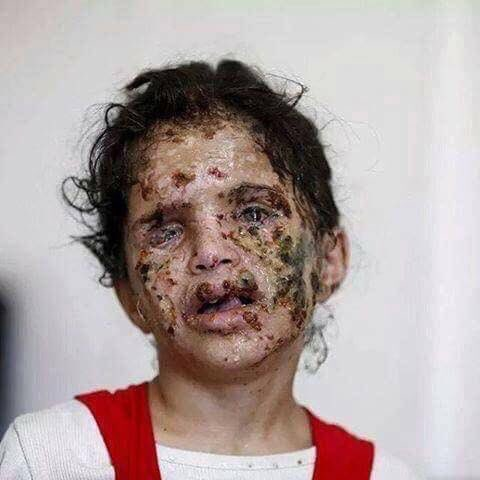 This young girl from Yemen, is a victim of a chemical attack in her own country by Saudi Arabia, the chemical used was white phosphorus. So why don't UK, France and USA bomb Saudi Arabia, and taking out their chemical weapons with air strikes? #SyriaStrikes #SyriaStatement