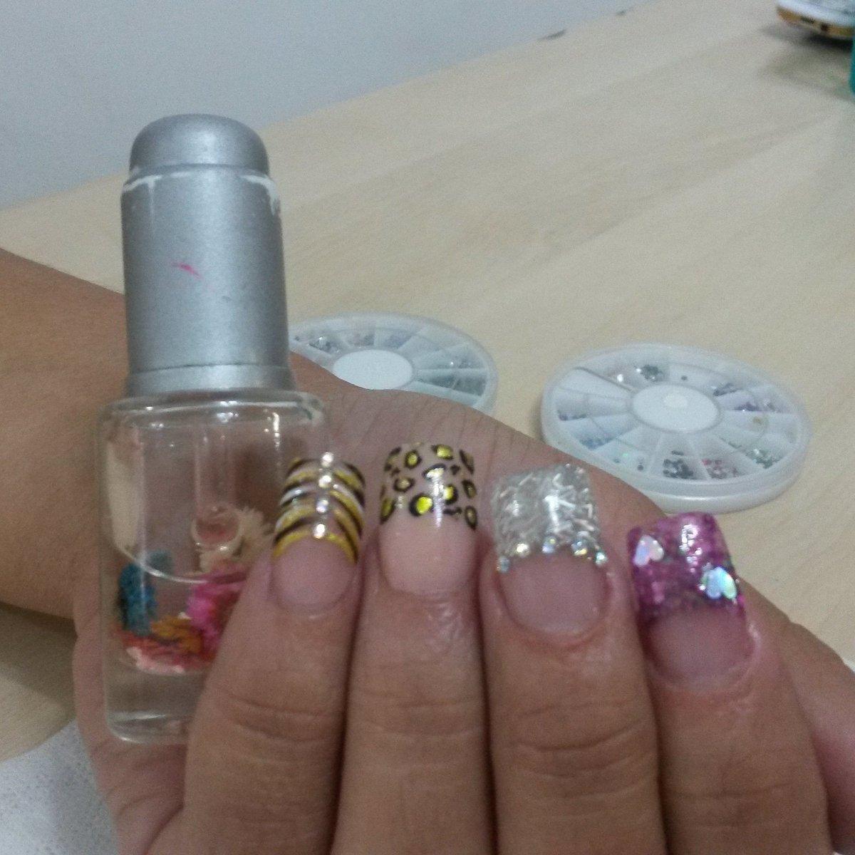 Fantástico Causas De Uñas Onduladas Embellecimiento - Ideas de Arte ...