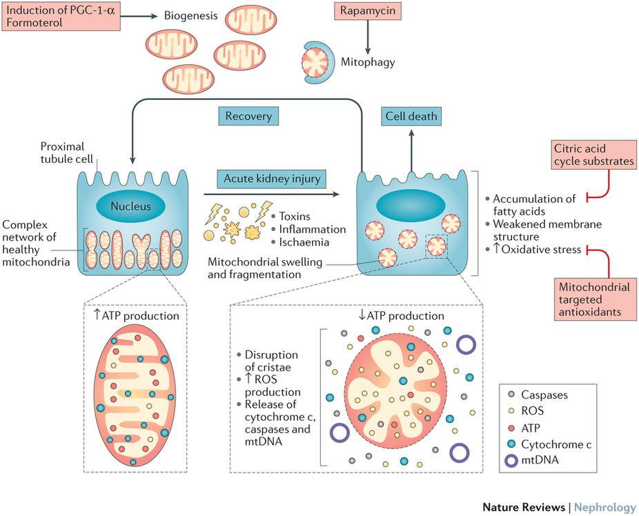 Naturerevnephrology On Twitter Mitochondrial Injury And