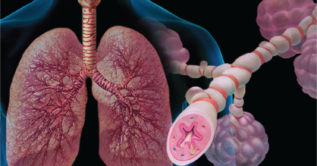 Webmd On Twitter The Symptoms Of An Asthma Attack Are Caused By A