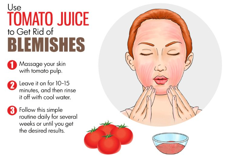 How to remove blemishes with home remedies