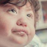 Image for the Tweet beginning: Noah Morales tiene microcefalia y