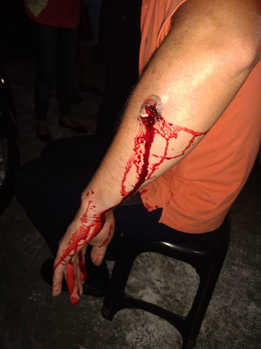 Massacre em Curitiba: Polícia ataca manifestantes pro Lula e fere dezenas de pessoas https://t.co/aSRJSvCyyb