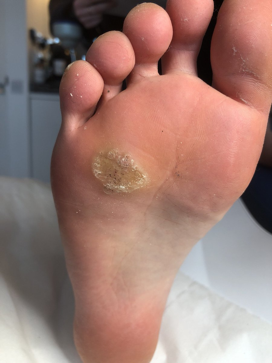 Wart on foot cure. Wart on foot with black center